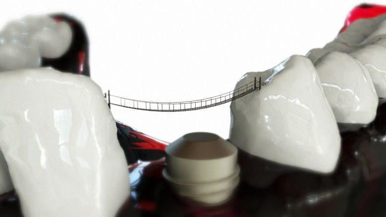 La pose d'un implant dentaire par un dentiste
